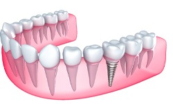 Single tooth dental implant graphic