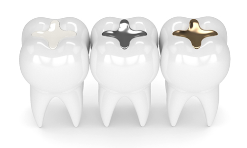 A diagram of teeth, each with a tooth-colored filling, silver filling, and a gold filling