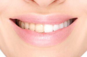 cosmetic dentist inTulsa OK