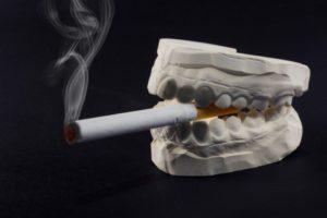 teeth mold holding a cigarette
