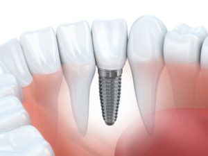 Dental Implant With Real Teeth